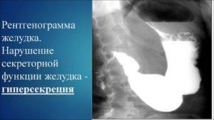 Гиперсекреторный гастрит желудка