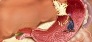 Хронический гастрит с очаговой атрофией