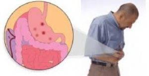 Симптомы эрозивного гастрита