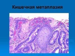 Кишечная метаплазия