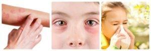 склонны к аллергии