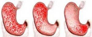 Diagnoz-gemorragicheskij-gastrit