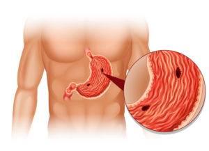 язвы пищеварительного органа
