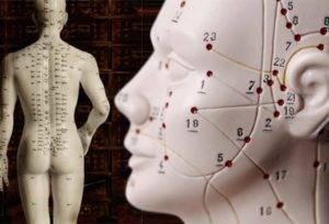 Общее описание метода иглотерапии