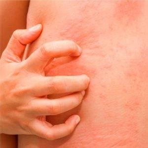 Аллергия при гастрите