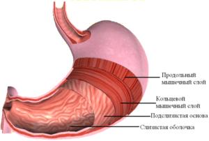 Утолщение стенки желудка общее описание