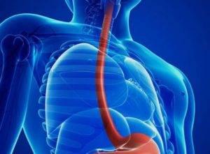 Дисфагия характерна длясужения пищевода