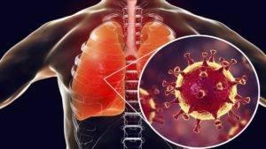 Как выглядят легкие больного коронавирусом