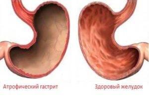 Умеренно выраженный хронический атрофический гастрит