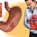 Клинические проявления хронического гастрита
