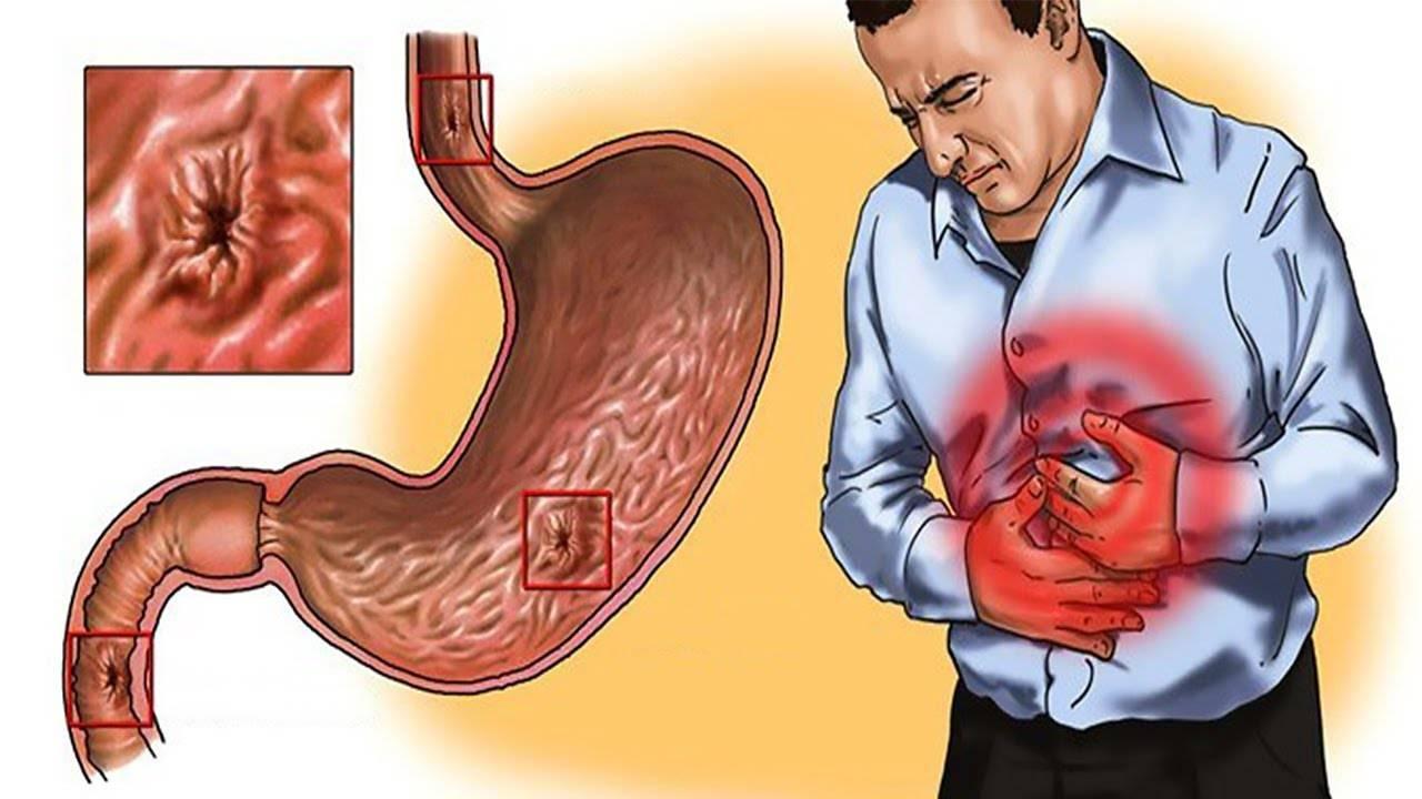 Эрозивный атрофический гастрит симптомы и лечение