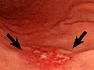 Эрозивный гастрит желудка