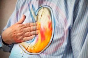 Как вылечить желудок с повышенной кислотностью thumbnail