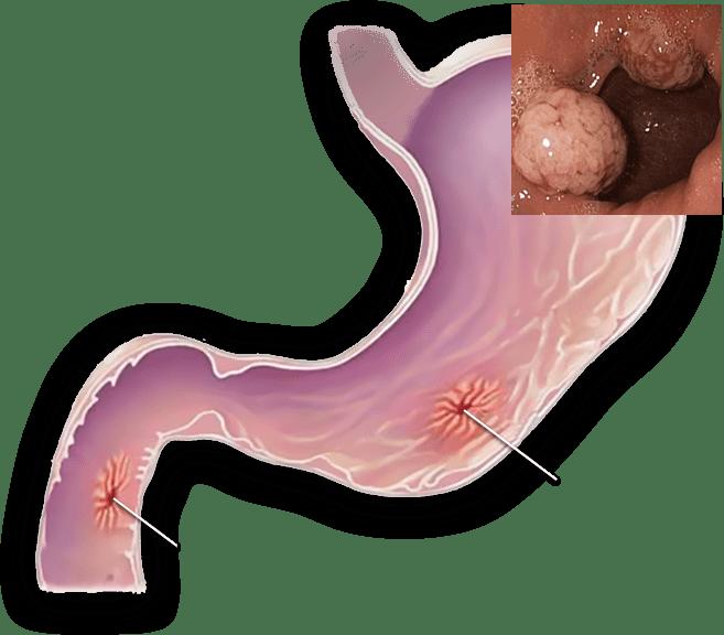 Лечение эрозии желудка народными средствами: самые эффективные рецепты