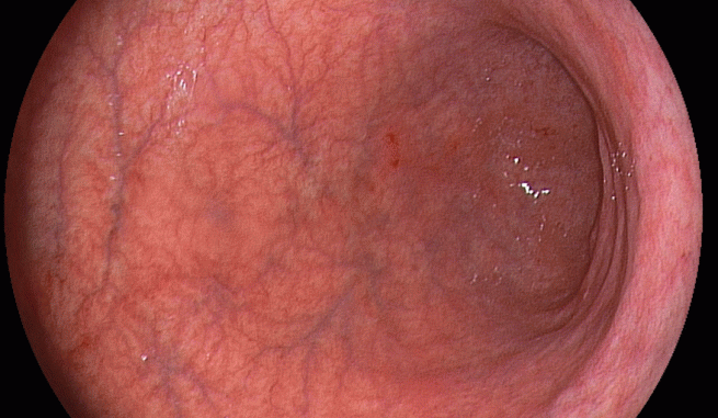 Как выглядит хронический гастрит желудка фото thumbnail