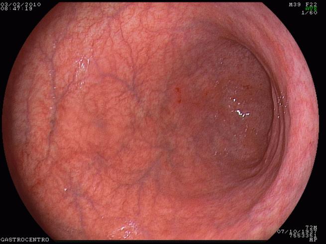 атрофический гастрит фото желудка