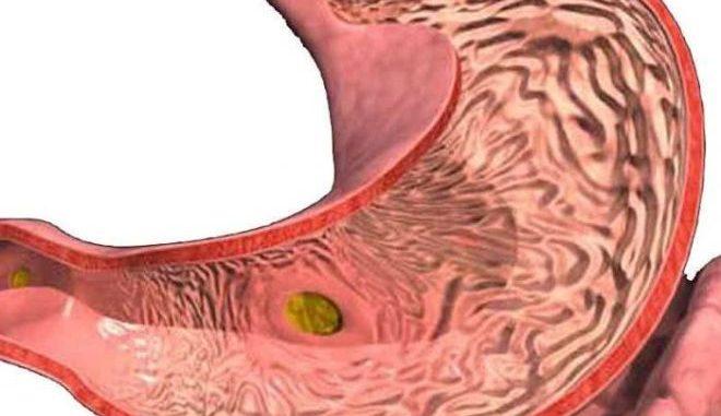гастрит кишечника
