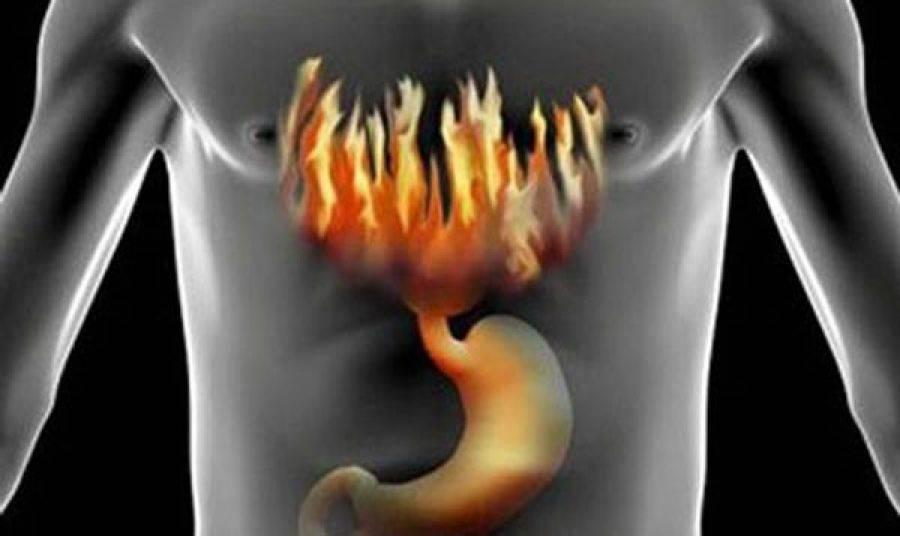 При какой кислотности желудка бывает изжога