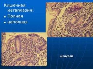 полная метаплазия