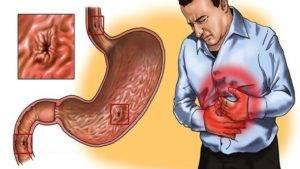 Анацидный гастрит общее описание болезни