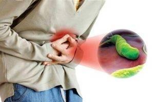 Как заболевают гастритом