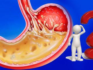 Что такое кислотность желудка и как ее определить