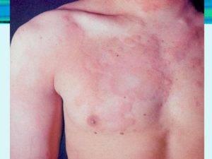 Аллергический гастрит в виде крапивницы