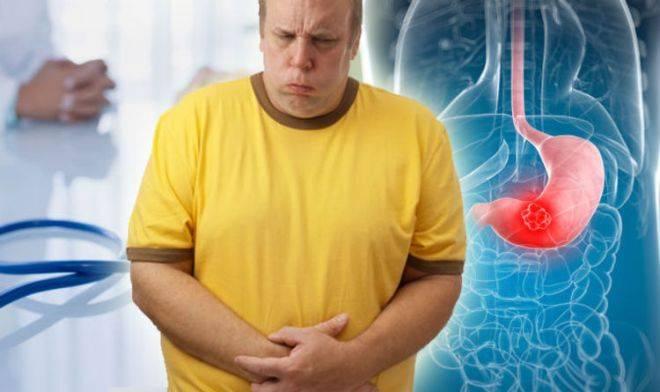 Несварение желудка