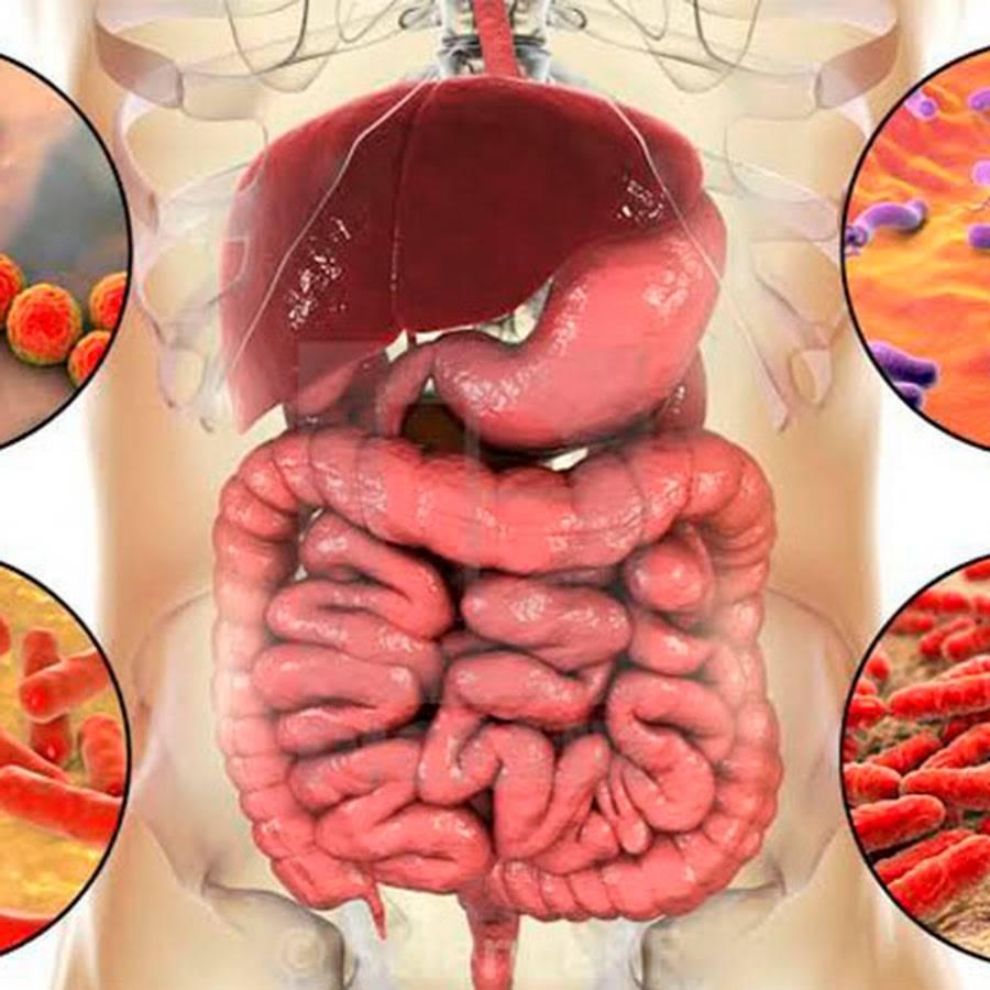 Дисбактериоз гастрит