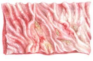 Фибринозный гастрит острый гастрит, характеризующийся дифтеритическим воспалением слизистой оболочки желудка