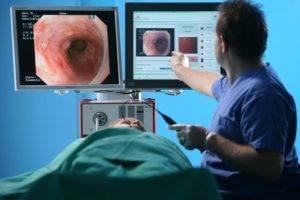 Эрозивный гастрит биопсия