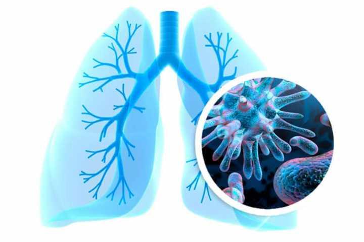 Коронавирус без пневмонии
