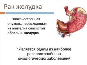 Рак желудка у женщин