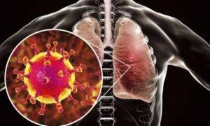 Обострение панкреатита при коронавирусе