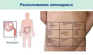 Аппендицит симптомы в домашних