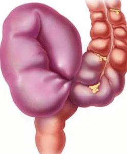 Непроходимость кишечника – состояние, при котором нарушается продвижение кишечного содержимого