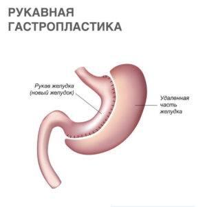 Гастропластика