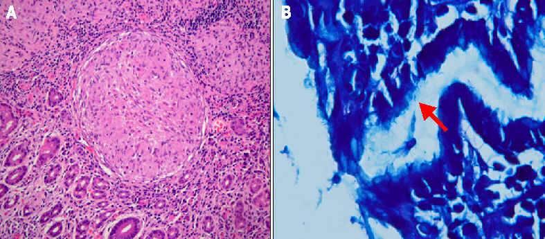 Гранулематозный гастрит патогенез