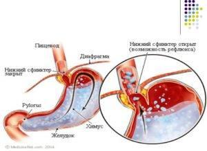 Как вода попадает в желудок