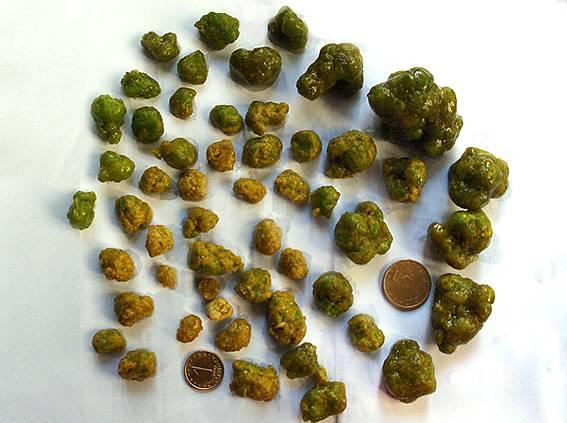 Камни в кале что делать