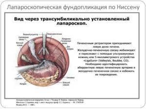 Лапароскопическая фундопликация