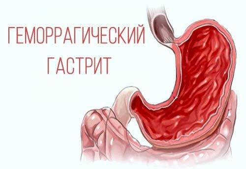 Острый геморрагический гастрит лечение