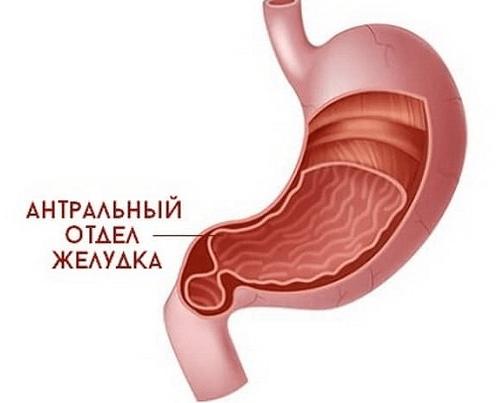 Поверхностный антральный гастрит лечение