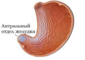 Поверхностный антральный гастрит желудка