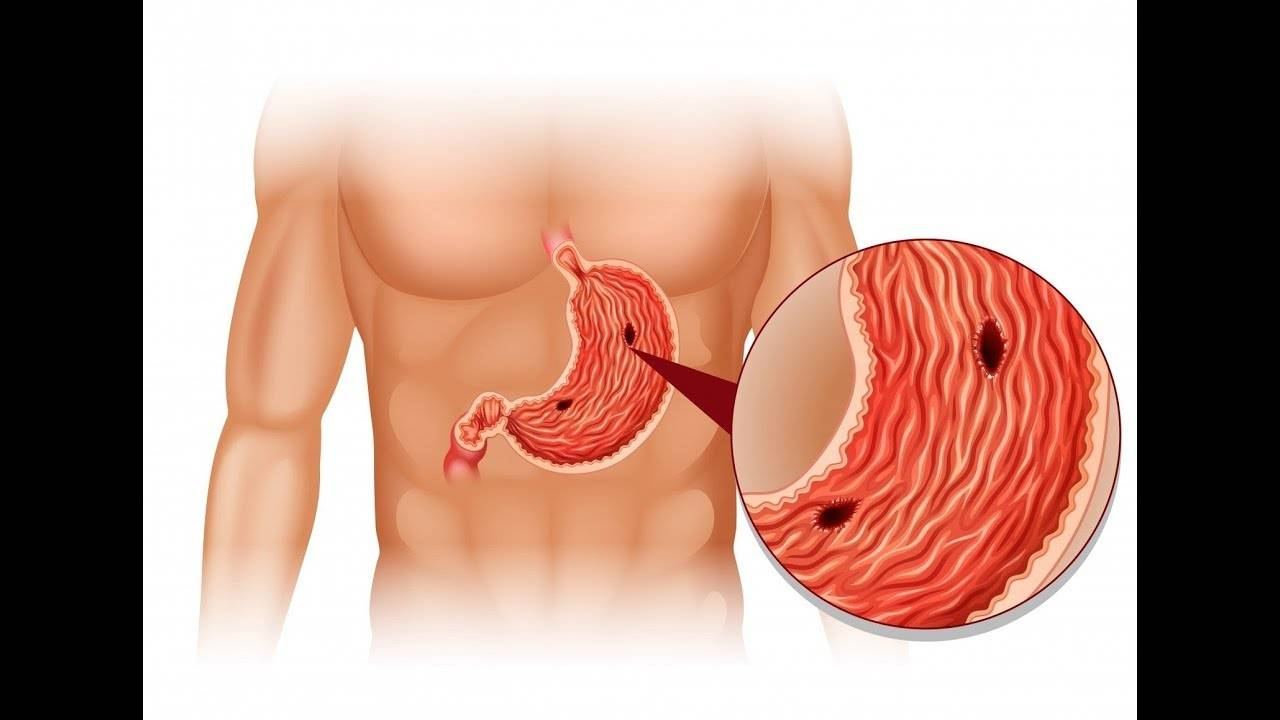 Признаки язвы желудк симптомы