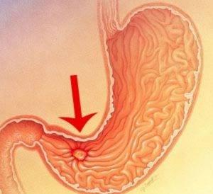 Признаки язвы желудка первые симптомы