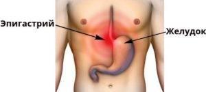 болезненность в эпигастрии справа
