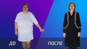 шунтирование желудка фото до и после