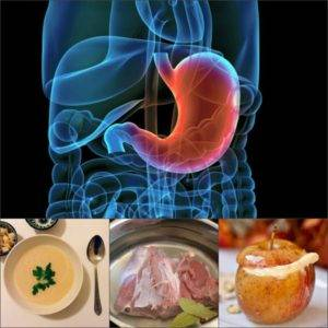 восстановить желудок при гастрите