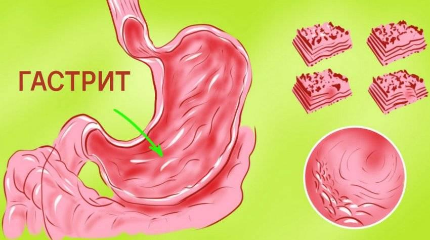 заболевание жкт гастрит